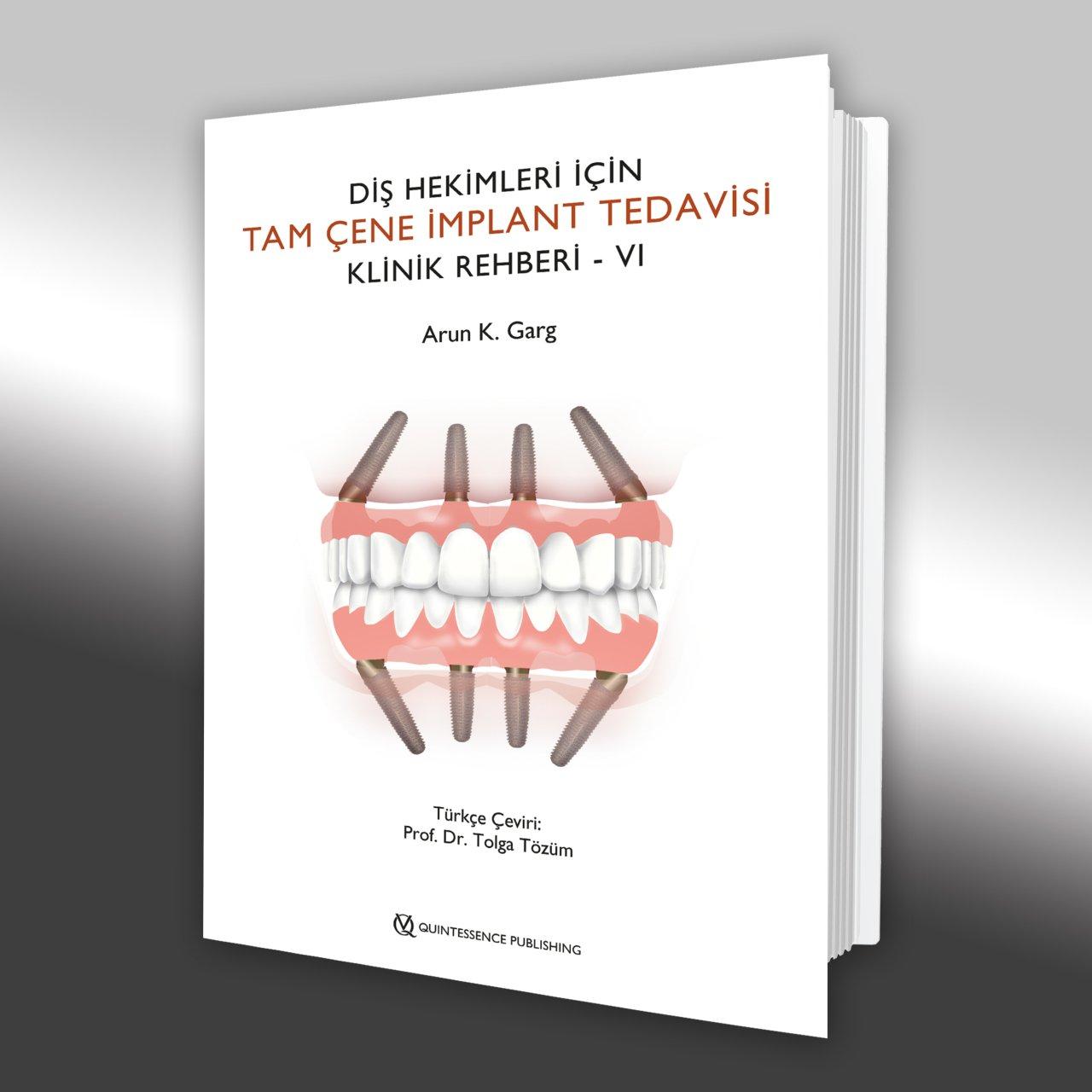 DİŞ HEKİMLERİ İÇİN TAM ÇENE İMPLANT TEDAVİSİ KLİNİK REHBERİ - VI